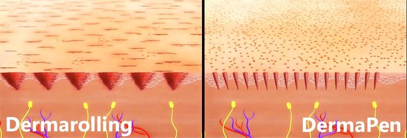 Dermapen is more effective than dermaroller